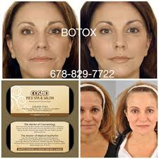 cosmo med spa u0026 salon botox