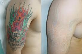 tattoo removal frequently asked questions frequently asked questions about how to remove a tattoo