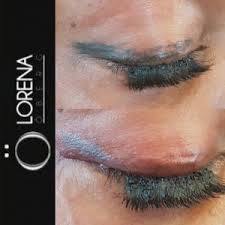 eyeliner tattoo images tattoo eyeliner removal correction migration lorena oberg