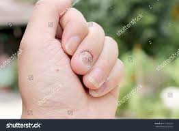 fungus infection on nails hand finger stock photo 471469229