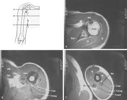 Axial Shoulder Anatomy Tumors And Related Conditions Musculoskeletal Key