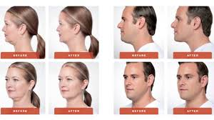 how to make a double chin look less noticable eith hair botox facial fillers injectables spa tulsa emerge