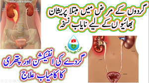 kidney infection successful treatment of kidney infection and stone perfect
