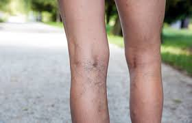 legs veins why we get them and how dermatologists treat them