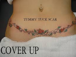 bad scaring from tummy tuck plastic surgery answers questions