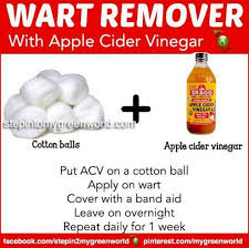 Home Remedies For Planters Warts by The 9 Best Images About Wart On Pinterest 50 10 And Apple