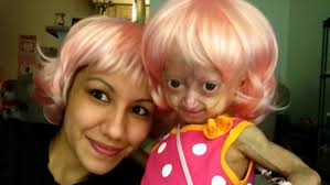 Adalia Rose Meme - adalia rose and her family will make their national tv debut with