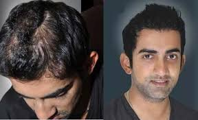 aamir khan hair transplant male celebrities who have undergone plastic surgery and hair