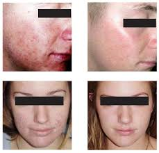 blue light therapy for skin cancer tremetski com skin laser treatments for acne faq can i sue a