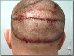 shane warne hair transplant 3500 graft strip surgery hairline restoration hair transplant