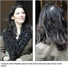 thinning hair in women on top of head is nigella lawson losing more thank just weight