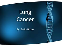 powerpoint design lungs lungcancer 100315013112 phpapp01 thumbnail 4 jpg cb 1268617341