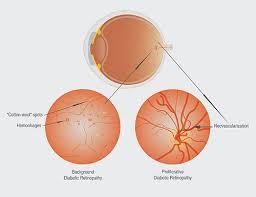 Surface Anatomy Eye Diabetic Retinopathy Albuquerque Diabetic Eye Exams Santa Fe