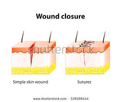 wound healing process help surgical suture stock illustration