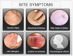 Do Bed Bug Bites Itch Bed Bug Bite Symptoms Johny Fit