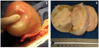 mons pubis hair precocious puberty an infant with a virilizing ovarian tumor