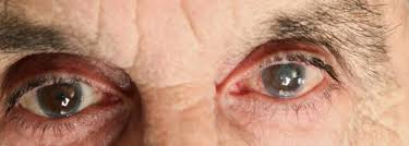 Can Cataracts Lead To Blindness Grey Or Cloudy Eye Color It Could Mean Cataracts