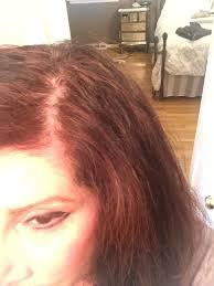 help for thinning hair u2013 and eyebrows too u2013 everbeautiful by