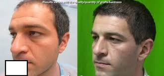 best hairtransplant in the world best fue hair restoration doctor in the world 10 000 graft procedure