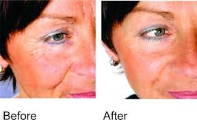 light therapy for acne scars red light therapy reviews acne scars melissatoandfro