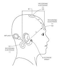 Brainstem Mass Patent Us20120029377 Electrically Evoked Brainstem Response