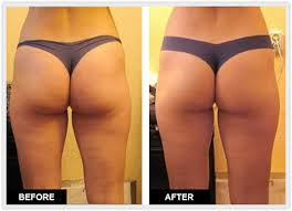 red light therapy cellulite thermocell cellulite inhibit cellulite naturally