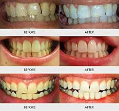 Blu U Before And After Amazon Com Auraglow Teeth Whitening Kit Led Light 35 Carbamide