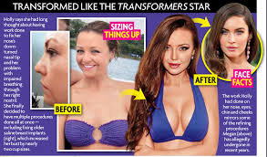 Holly Stars by Bachelorette Pageant Winner Has Plastic Surgery
