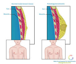 Anatomy Difference Between Male And Female Pseudogynecomastia Causes Diagnosis U0026 Treatment Options