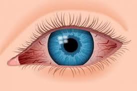 eye pain from light eye pain and redness iris blue light filter for eye