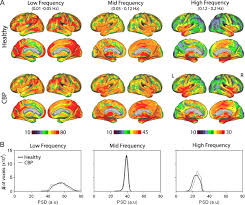 the cortical rhythms of chronic back pain journal of neuroscience