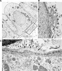 aberrant expression of laminin 332 promotes cell proliferation and