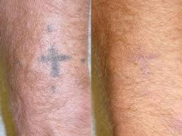 laser tattoo removal ambler laser treatments bluebell strella