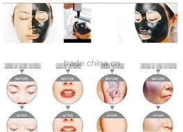 ayj 302b ayplus tattoo removal machine amazon of laser from china