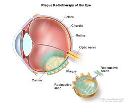 The Anatomy And Physiology Of The Eye Intraocular Uveal Melanoma Treatment Pdq U2014patient Version