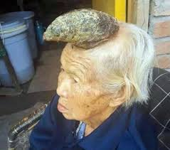 www hairsnips com old woman grows fingernails in place of hair holleewoodhair