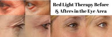 benefits of red light therapy beds red light therapy reduce wrinkles age spots acne more