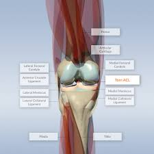 Anatomy Of The Knee Torn Acl On An Interactive Knee Model