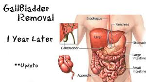 are the appendix and the gall bladder ipsilateral ruptured