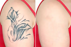 no more pain this simple cream may be able to remove your tattoos