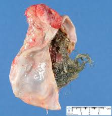 pilonidal cyst teeth dermoid cyst picture pictures photos