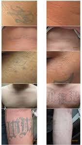 tattoo removal laser skin care modesto skinrenew