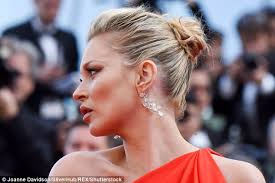 jimmy kimmel hair loss new kate moss croydon facelift could cause hair loss daily mail