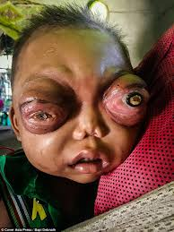 The Blind Spot In The Eye Is Due To Indian Boy Is Going Blind Due To His Protruding Eyes Daily Mail