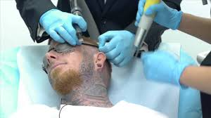 crazy video of man getting face tattoo removed youtube