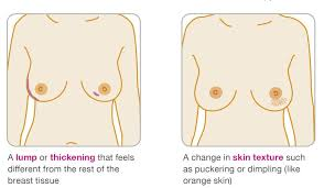 Light Brown Discharge After Period The 7 Surprising Signs That Mean You Could Have Breast Cancer