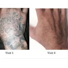 Tattoo Removal Inc | tattoo removal 10 reviews tattoo removal 5580 imperial hwy
