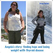 angela u0027s story of finding hope with hashimoto u0027s and weight loss