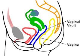 Hymen Female Anatomy Vaginal Vault Wikipedia