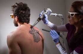 guaranteed laser tattoo removal virginia tattoo removal process